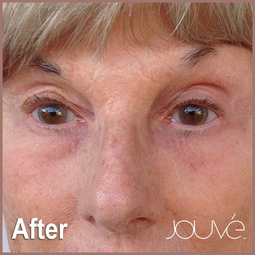 Jouve-Heshie-After