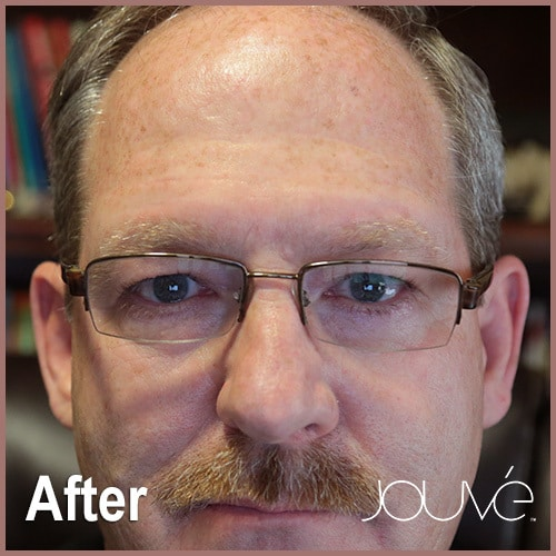 Jouve-Rick-After