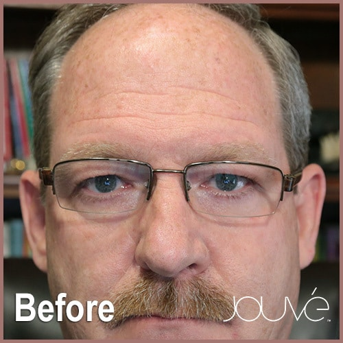 Jouve-Rick-Before